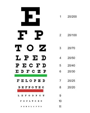 Dimension D Un Lit 2 Places Charmant Eye Examination