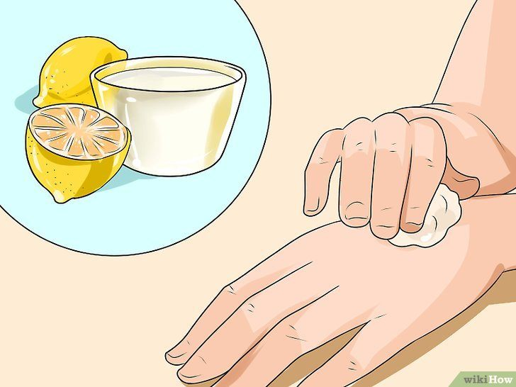 Insecticide Punaise De Lit Pharmacie Génial Ment Traiter Des Piqures De Punaises De Lit Wikihow