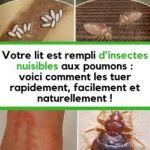 Punaise De Lit Comment Les Tuer Inspirant 77 Meilleures Images Du Tableau Idées & astuces Pour La Maison En 2019