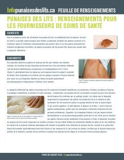 Punaise De Lit Traitement Professionnel Joli Punaises Des Lits Renseignements Pour Les Bed Bugs