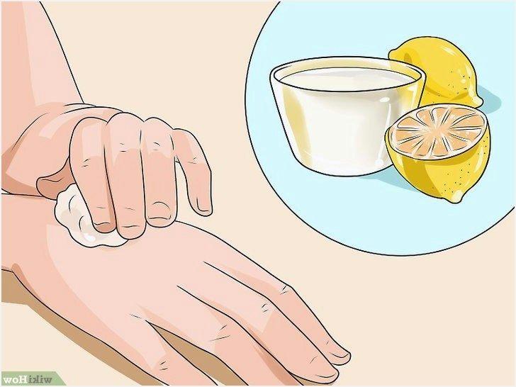 Symptome Punaise De Lit Belle Puces Ou Punaises De Lit 26 Graphier Symptome Punaise De Lit